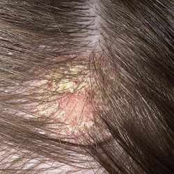 This is a bleach burn on scalp, this is a less severe case and will take weeks to heal.